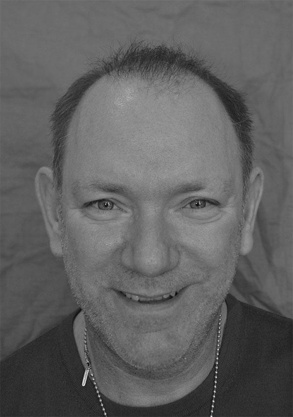 9 Months post transplant - no longer a bald man