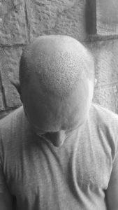 post hair transplant