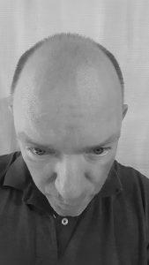 Hair Transplant After 9 Weeks