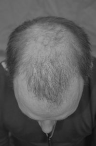 Hair Transplant After 9 Months