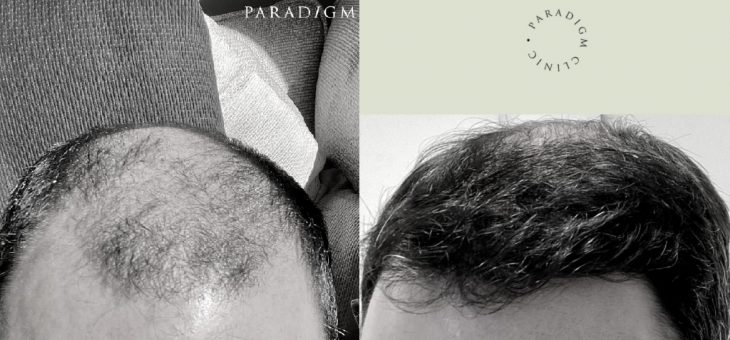 A Hair Transplant should be Outstanding; Not Stand Out
